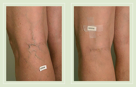 Before and After pics-varicose leg vein sclerotherapy 37yo