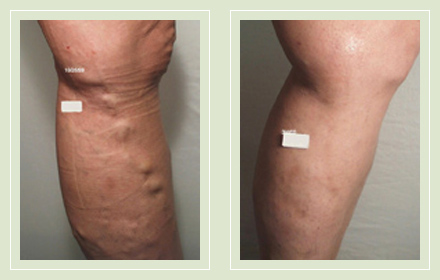 before after pictures varicose vein treatment legs-18