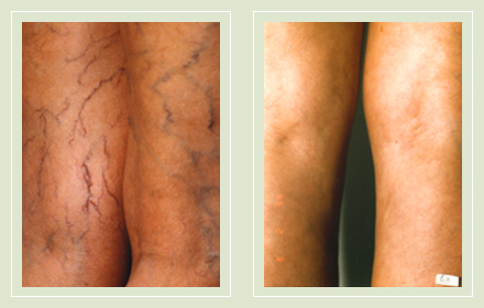 before after pictures dark veins treatment legs-18
