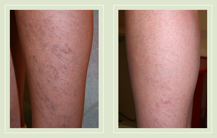 before after pictures spider vein treatment legs-17