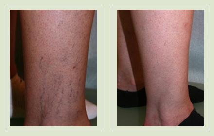before after pictures spider vein treatment legs-16