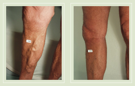 before after pictures varicose vein treatment legs male-16