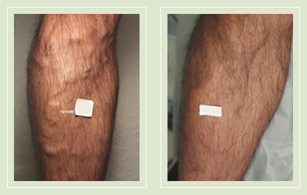 before after pictures varicose vein treatment legs male-15