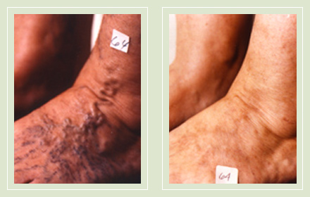 before after pictures varicose veins treatment legs 14