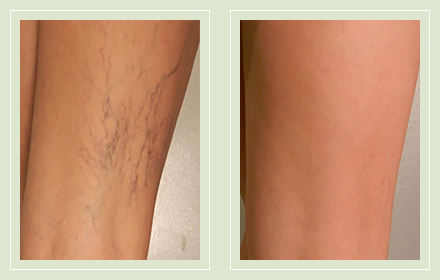 before after pictures spider vein treatment legs-33