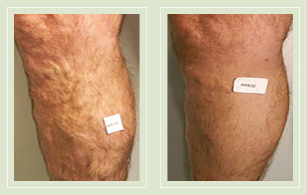 varicose-vein-before-after-pics-male-legs