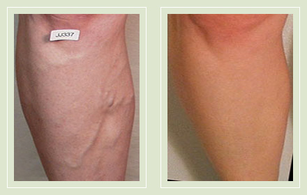 varicose-vein-before-after-pics-female-legs