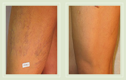 before after pictures spider vein treatment legs-30