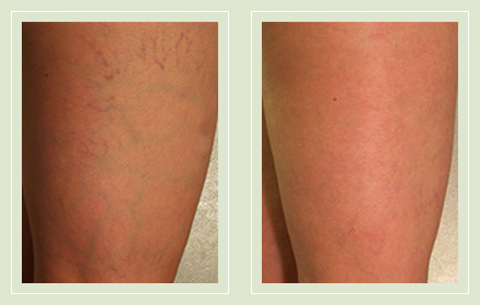 before after pictures varicose spider vein treatment legs-29