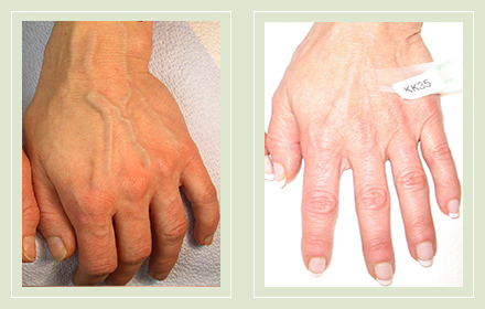 varicose-hand-vein-treatment-before-after-pics-1