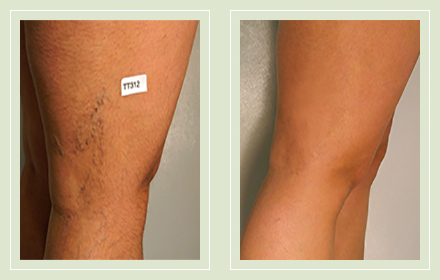 before after pictures spider vein treatment legs-34