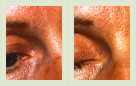 spider-facial-veins-treatment-nose-before-after-pics-01