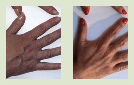 hand-vein-removal-before-after-pics-9