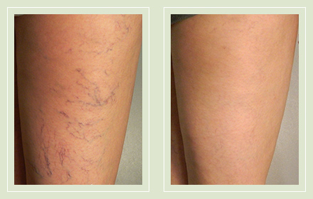 before after pictures spider vein treatment legs-32