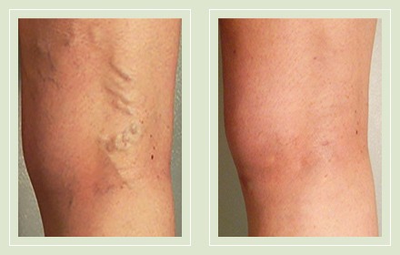 before after pictures varicose veins treatment legs-27