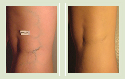 before after pictures varicose veins treatment legs-28
