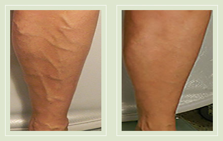 before after pictures varicose vein treatment legs-31