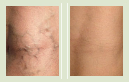 before after pictures small varicose veins treatment legs-20