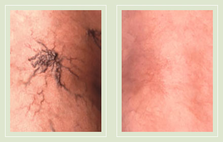 before after pictures varicose veins treatment legs-22