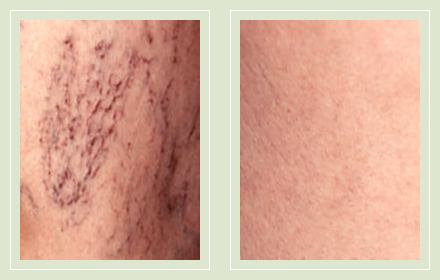 before after pictures spider vein treatment legs-21
