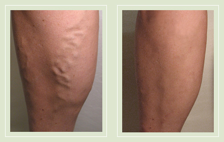 before after pictures varicose vein treatment legs-19