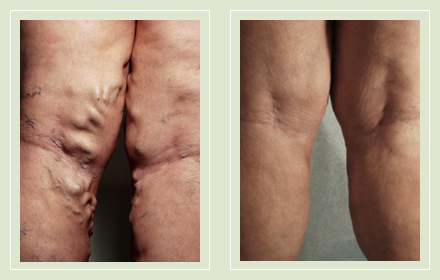 before after pictures extreme varicose vein treatment legs-18