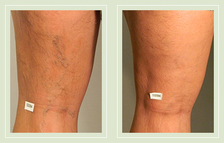 before after pictures varicose veins treatment legs-23