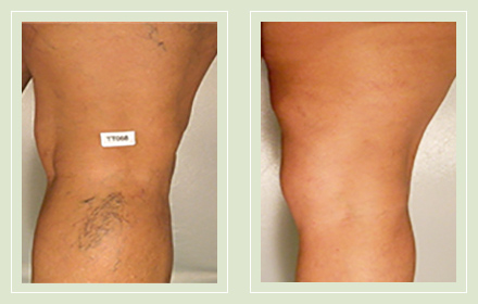 before after pictures spider veins treatment legs-26