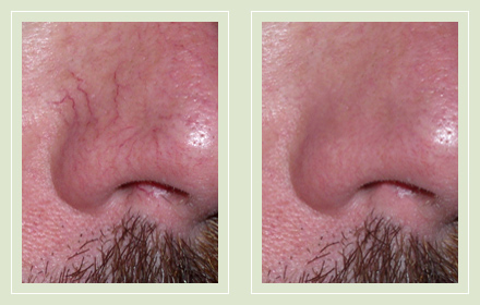 Before and after nose face vein laser therapy 42yo