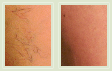 before after pictures spider veins treatment legs-25