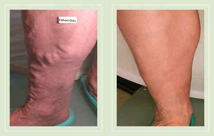 before after pictures large varicose veins treatment legs-24